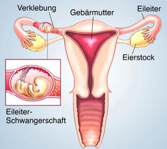Diagnosefehler: Nichterkennen einer Eileiterschwangerschaft