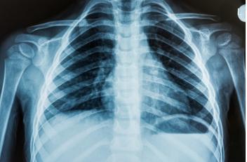 Schmerzensgeld: Lungenarterienembolie