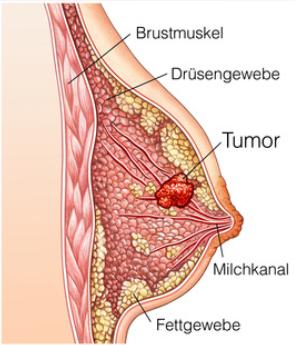 Schmerzensgeld: Mammakarzinom (Brustkrebs)