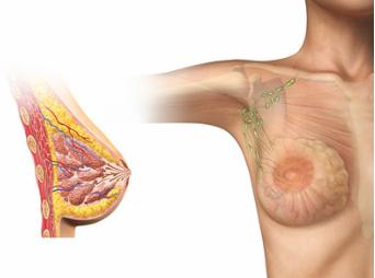 Theraphie-Fehler: Brustimplantat