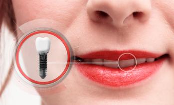 Zahnarztbehandlung, Implantateinbringung, Zahnextraktion