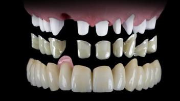 Zahnarzthaftung